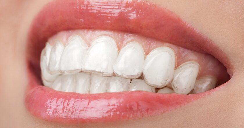 10 Benefits of Dental Implants Kennewick WA